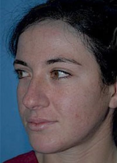 Rhinoplasty Gallery - Patient 5884059 - Image 1