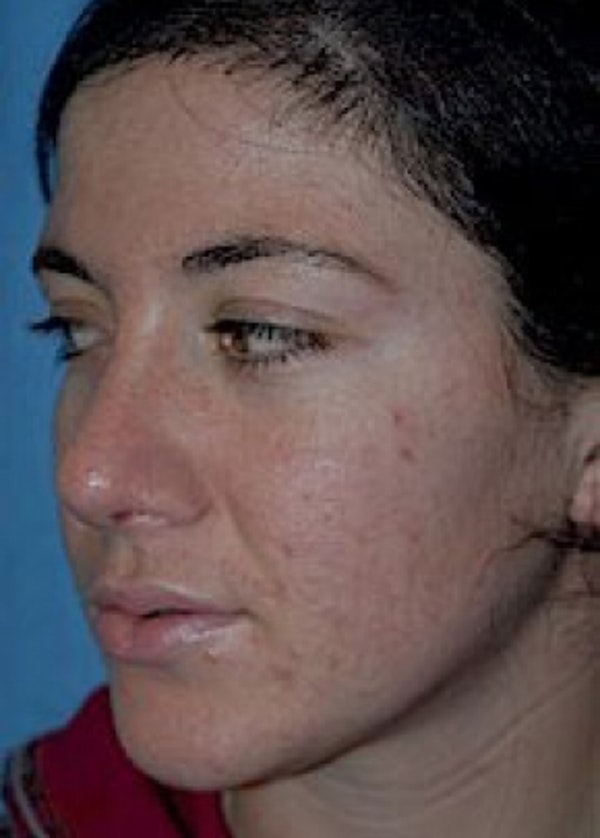 Rhinoplasty Gallery - Patient 5884059 - Image 2
