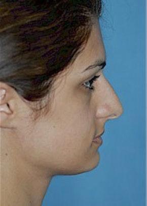 Rhinoplasty Gallery - Patient 5884062 - Image 1