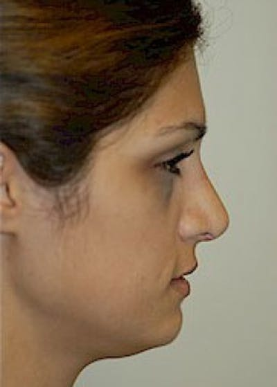 Rhinoplasty Gallery - Patient 5884062 - Image 2