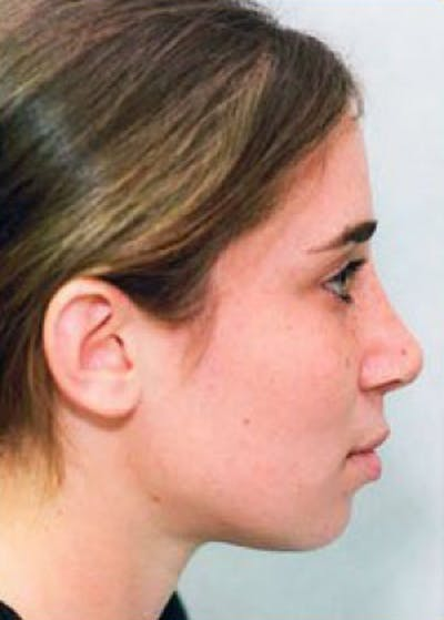 Rhinoplasty Gallery - Patient 5884063 - Image 2