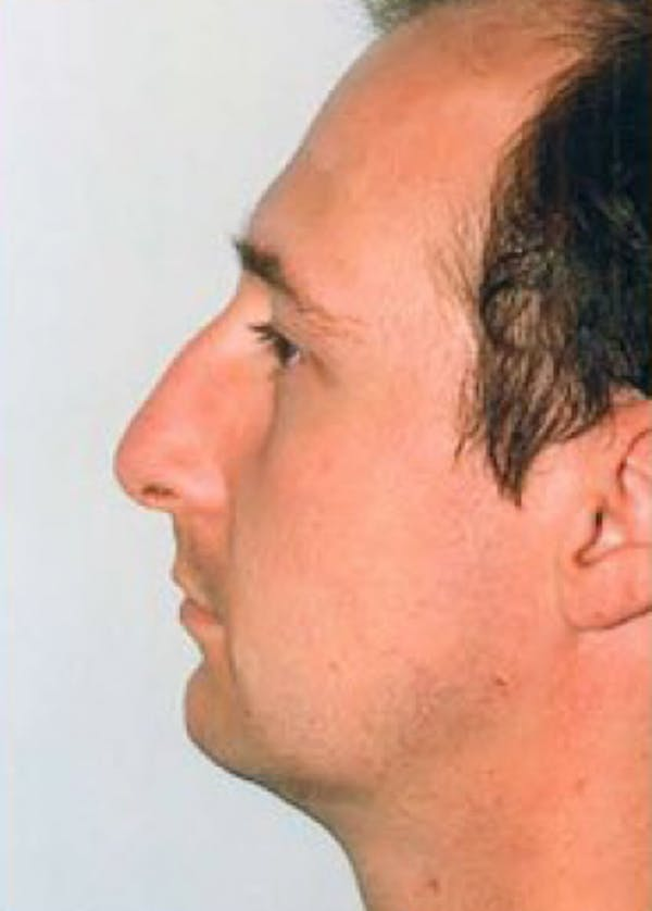 Rhinoplasty Gallery - Patient 5884065 - Image 1
