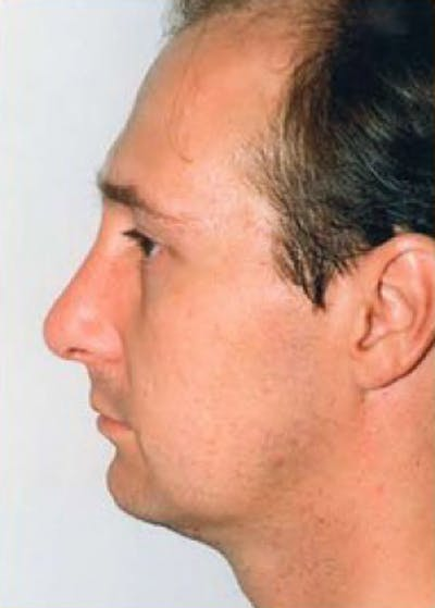 Rhinoplasty Gallery - Patient 5884065 - Image 2