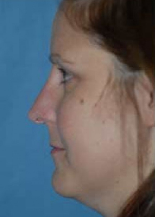 Rhinoplasty Gallery - Patient 5884067 - Image 1