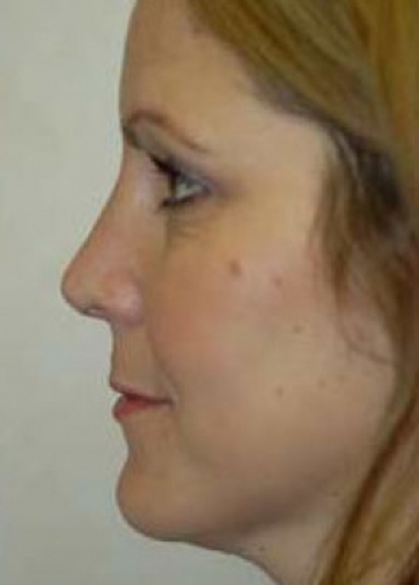 Rhinoplasty Gallery - Patient 5884067 - Image 2