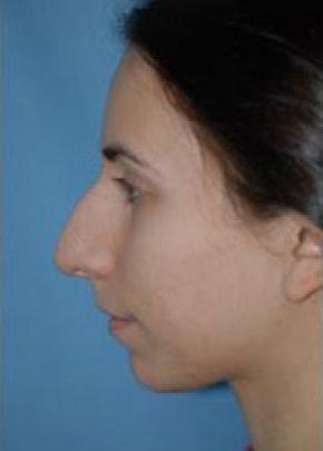 Rhinoplasty Gallery - Patient 5884069 - Image 1