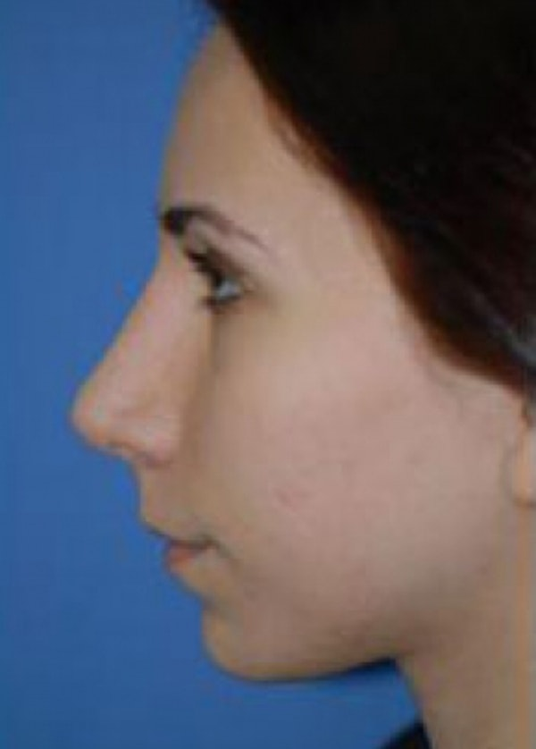 Rhinoplasty Gallery - Patient 5884069 - Image 2