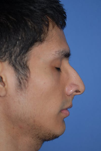 Rhinoplasty Gallery - Patient 5884070 - Image 1