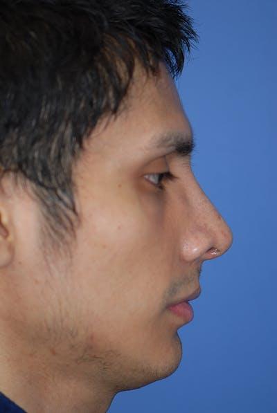 Rhinoplasty Gallery - Patient 5884070 - Image 2