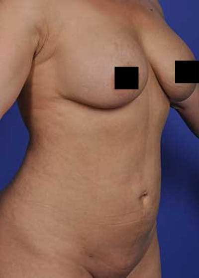 Liposuction and Smartlipo Gallery - Patient 5883288 - Image 4