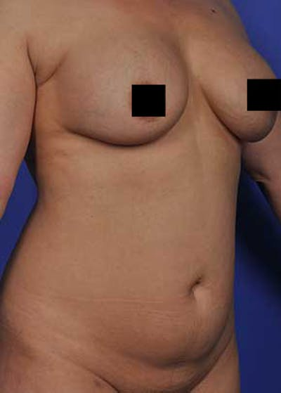 Liposuction and Smartlipo Gallery - Patient 5883288 - Image 1
