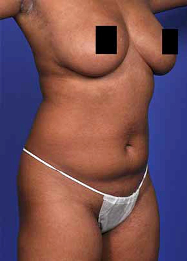 Liposuction and Smartlipo Gallery - Patient 5883292 - Image 1