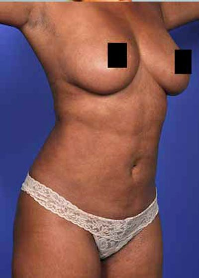 Liposuction and Smartlipo Gallery - Patient 5883292 - Image 5