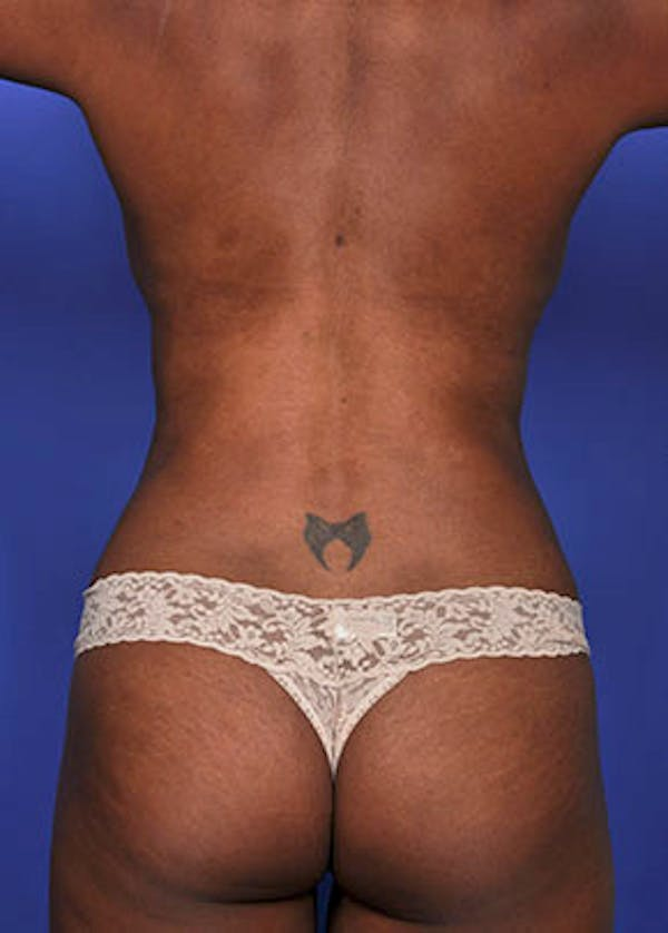 Liposuction and Smartlipo Gallery - Patient 5883292 - Image 4