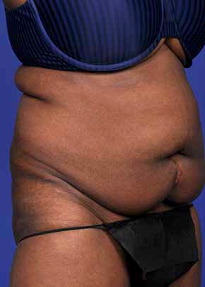 Liposuction and Smartlipo Gallery - Patient 5883273 - Image 1