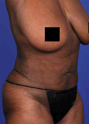 Liposuction and Smartlipo Gallery - Patient 5883273 - Image 2