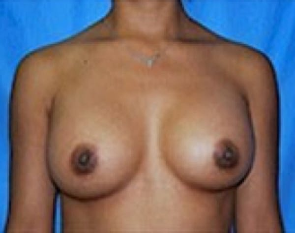 Breast Augmentation Gallery - Patient 5946056 - Image 2