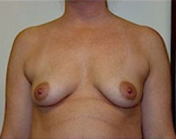 Breast Augmentation Gallery - Patient 5946059 - Image 1