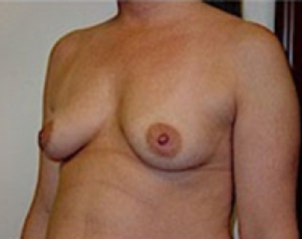 Breast Augmentation Gallery - Patient 5946059 - Image 3