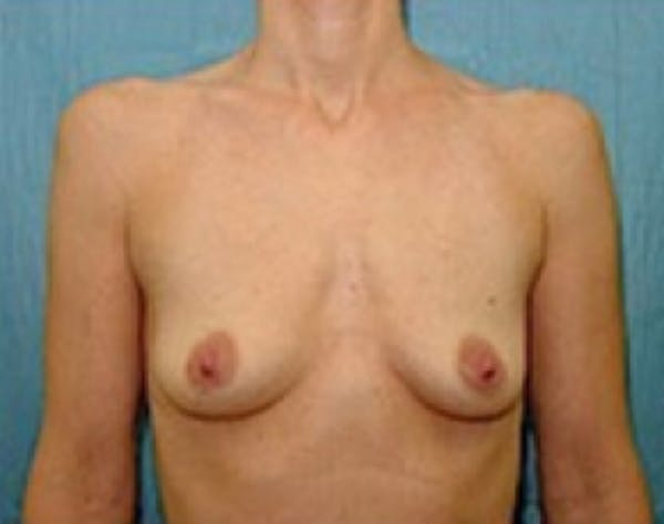 Breast Augmentation Gallery - Patient 5946062 - Image 1