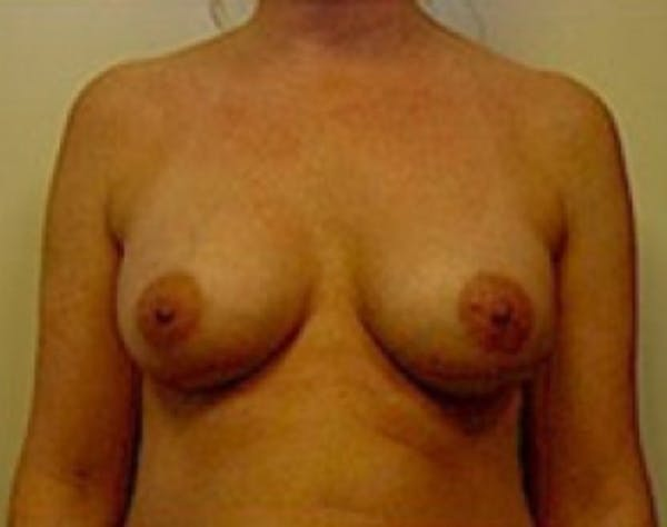 Breast Augmentation Gallery - Patient 5946062 - Image 2