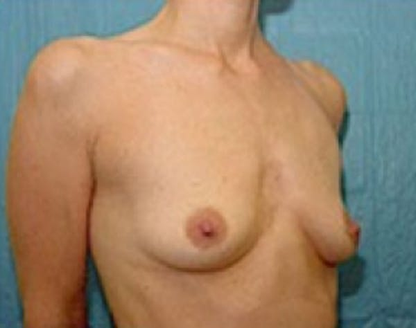 Breast Augmentation Gallery - Patient 5946062 - Image 3