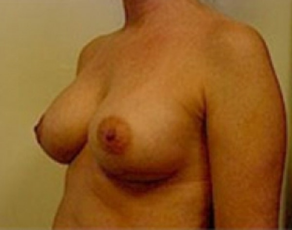 Breast Augmentation Gallery - Patient 5946062 - Image 4