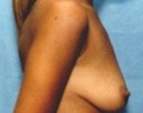 Breast Augmentation Gallery - Patient 5946070 - Image 1
