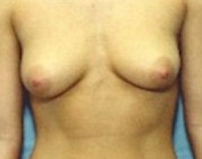 Breast Augmentation Gallery - Patient 5946074 - Image 1