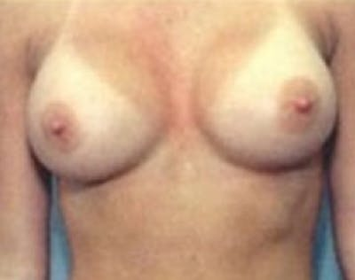 Breast Augmentation Gallery - Patient 5946074 - Image 54