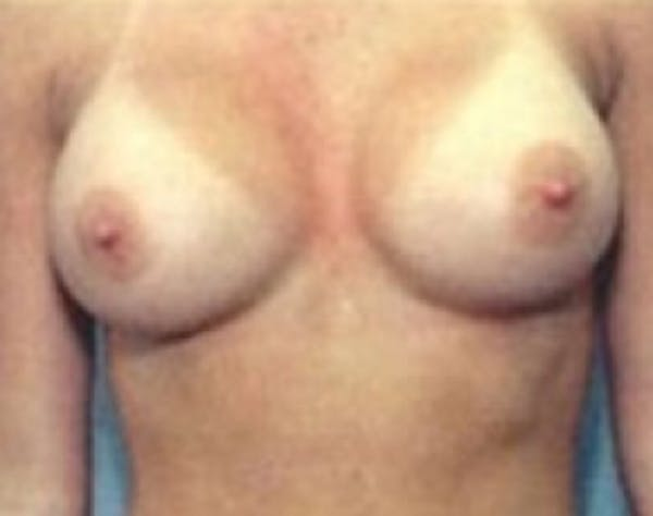 Breast Augmentation Gallery - Patient 5946074 - Image 2