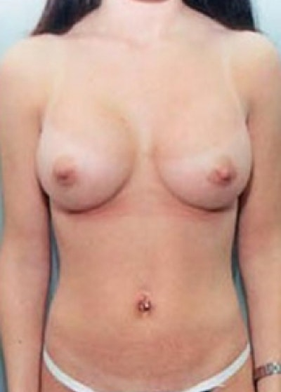 Breast Augmentation Gallery - Patient 5946079 - Image 2