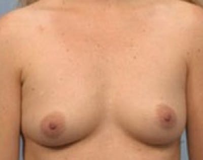 Breast Augmentation Gallery - Patient 5946083 - Image 1