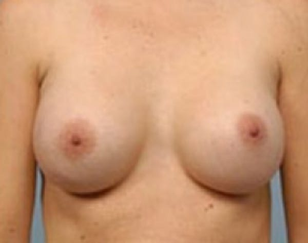 Breast Augmentation Gallery - Patient 5946083 - Image 2