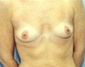 Breast Augmentation Gallery - Patient 5946086 - Image 1