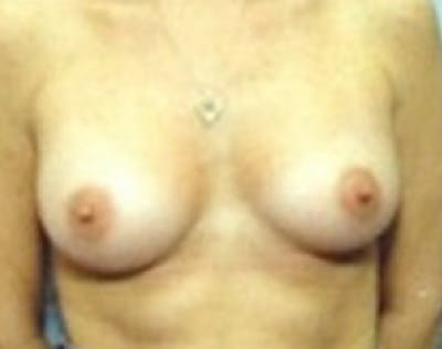 Breast Augmentation Gallery - Patient 5946086 - Image 2