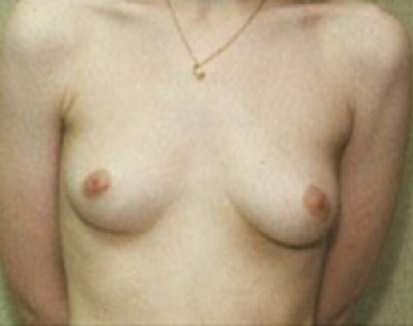 Breast Augmentation Gallery - Patient 5946087 - Image 1