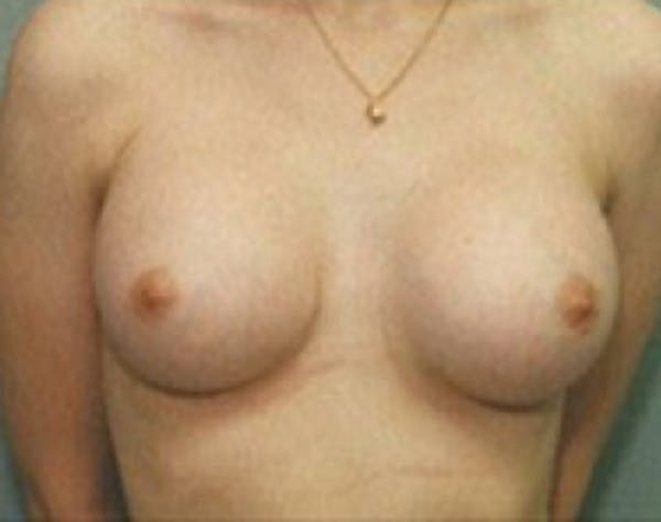 Breast Augmentation Gallery - Patient 5946087 - Image 2