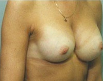 Breast Augmentation Gallery - Patient 5946254 - Image 59
