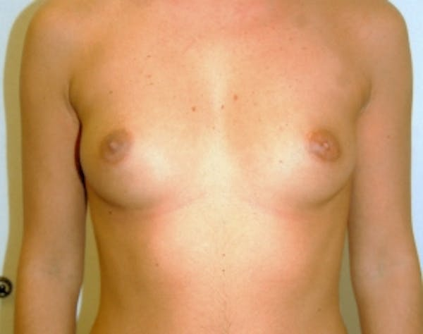 Breast Augmentation Gallery - Patient 5946285 - Image 1