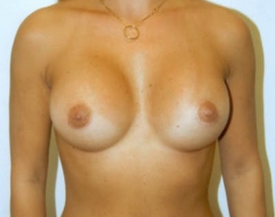 Breast Augmentation Gallery - Patient 5946285 - Image 60