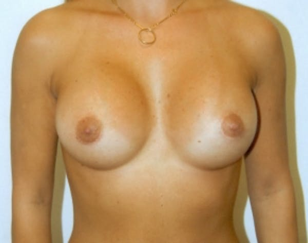 Breast Augmentation Gallery - Patient 5946285 - Image 2