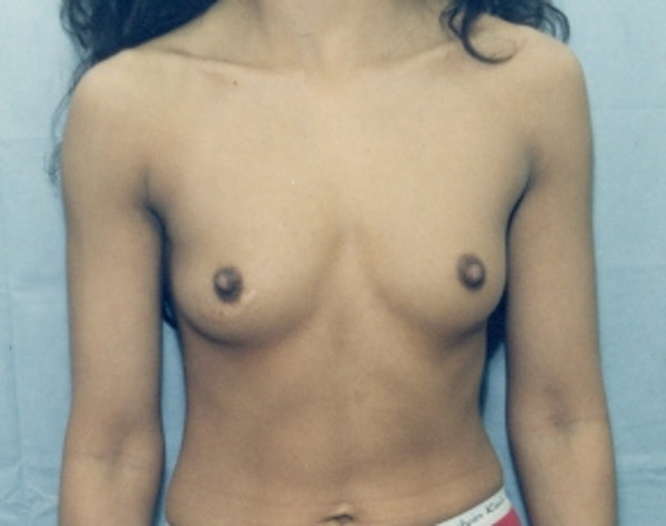 Breast Augmentation Gallery - Patient 5946286 - Image 1