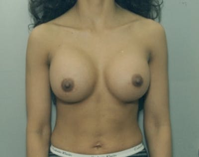 Breast Augmentation Gallery - Patient 5946286 - Image 2