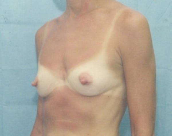 Breast Augmentation Gallery - Patient 5946288 - Image 1