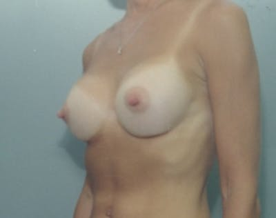 Breast Augmentation Gallery - Patient 5946288 - Image 2