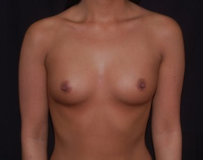 Breast Augmentation Gallery - Patient 5946291 - Image 1