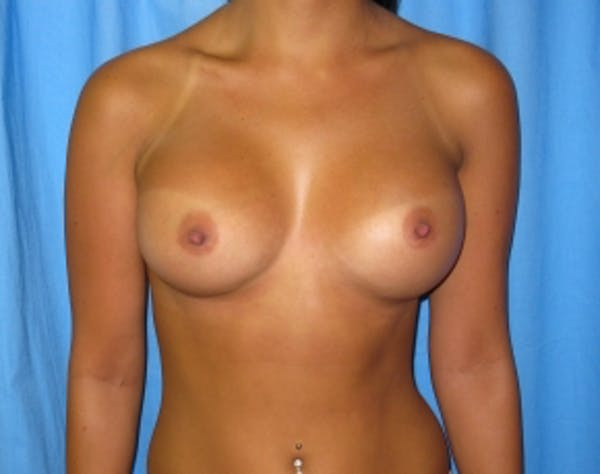 Breast Augmentation Gallery - Patient 5946291 - Image 2