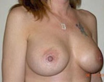 Breast Augmentation Gallery - Patient 5946297 - Image 65