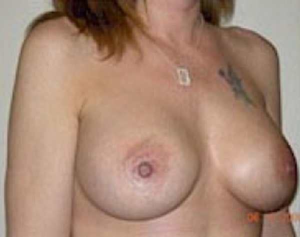 Breast Augmentation Gallery - Patient 5946297 - Image 2